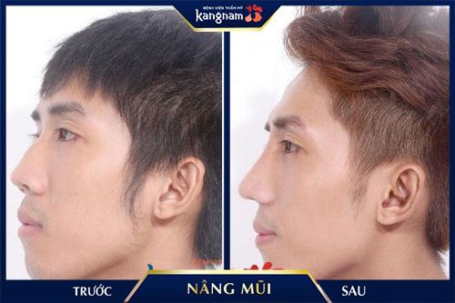hình ảnh nâng mũi cấu trúc 4d siêu âm