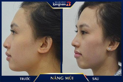 kết quả nâng mũi cấu trúc 4d siêu âm