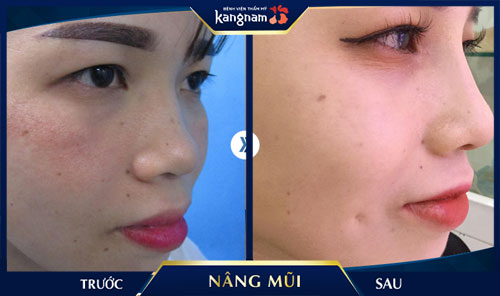 Khách hàng nâng mũi cấu trúc 4D nanoform tại kangnam