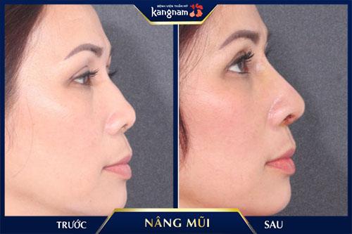 khách hàng nâng mũi cấu trúc 4d siêu âm