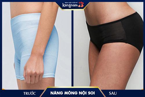 nâng mông tại kangnam