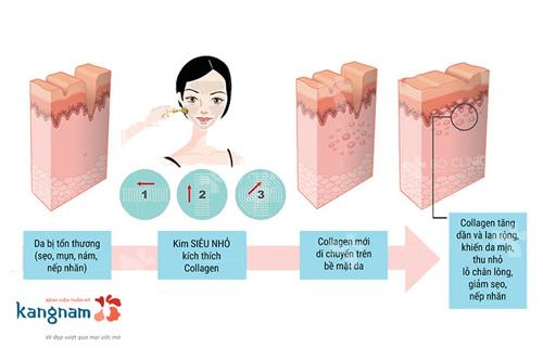 quy trình trị sẹo lõm