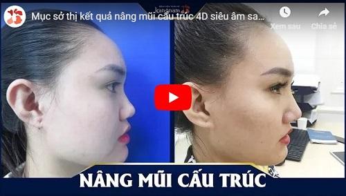 video nâng mũi sau 1 tháng