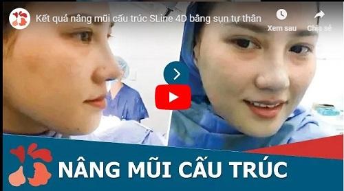 video kết quả nâng mũi