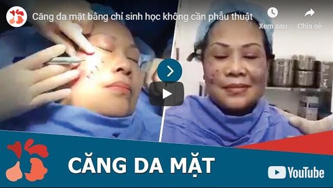 video căng da mặt kangnam