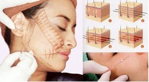 căng da chỉ collagen