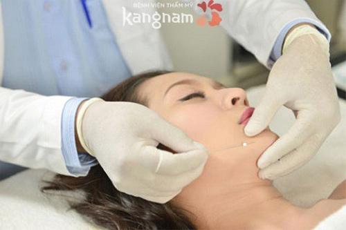 căng da mặt bằng chỉ collagen giá bao nhiêu