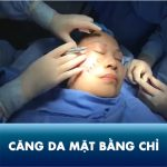 Căng da mặt bằng chỉ – Nâng cơ, xóa nhăn không phẫu thuật chỉ sau 45 phút