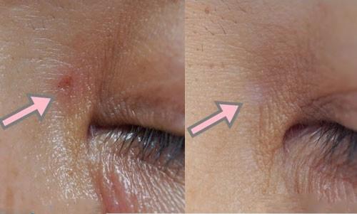 chăm sóc da mặt sau khi đốt mụn thịt