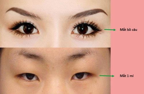 mắt bồ câu là gì