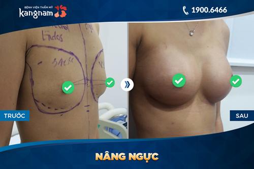 giá tiền nâng ngực nội soi