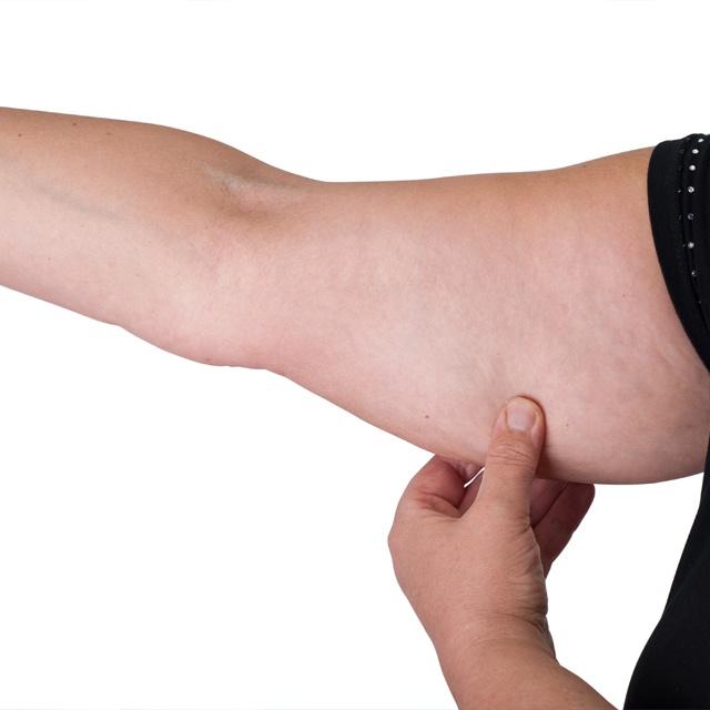 phẫu thuật thu nhỏ bắp tay