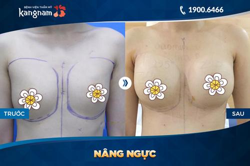 nâng ngực bằng mỡ tự thân có nguy hiểm không