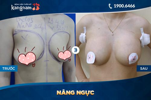 chi phí phẫu thuật nâng ngực nội soi