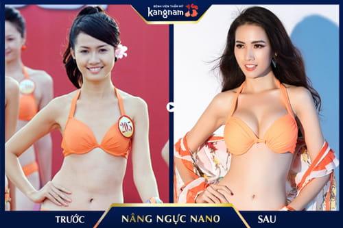 nâng ngực nano trước sau