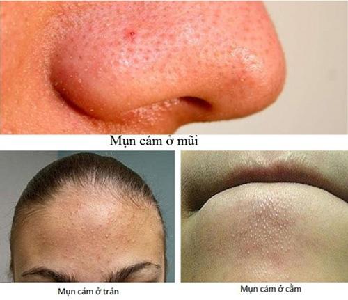 cách trị mụn cám trên mặt