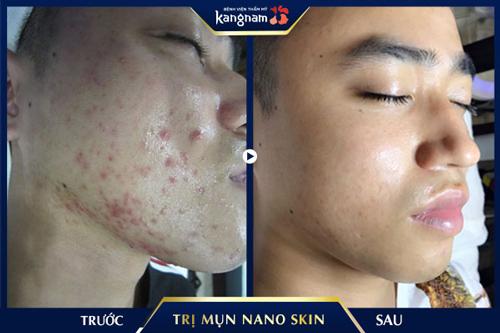 trị mụn công nghệ nano skin