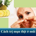 Mụn thịt ở mũi: Nguyên nhân và cách chữa trị an toàn, không tái phát