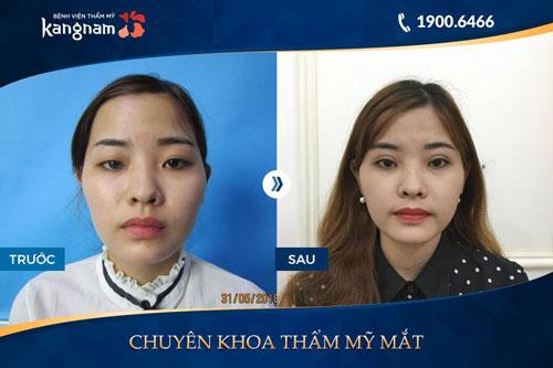 phẫu thuật mắt 2 mí