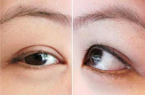 cắt mí mắt bị lệch