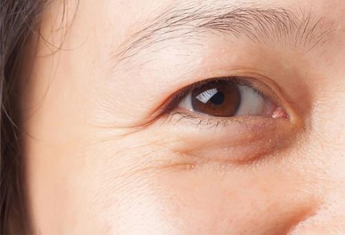 cấy mỡ hốc mắt sâu