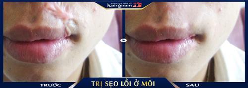 chữa sẹo lồi ở môi