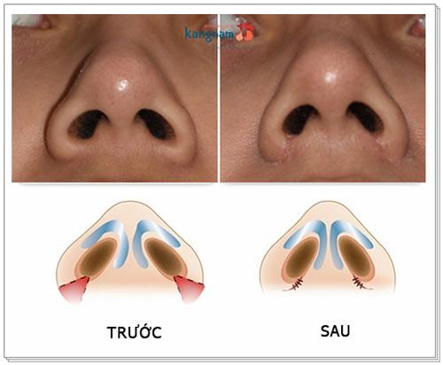 cuộn cánh mũi