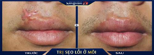 điều trị sẹo lồi ở môi
