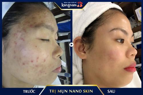 chữa mụn nano skin