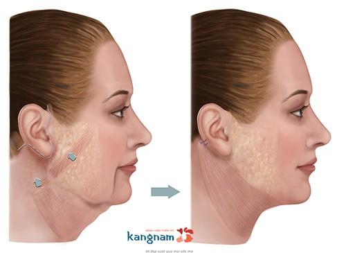 căng da vùng mặt