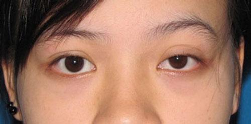 mắt to mắt nhỏ có sao không