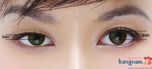mắt to mắt nhỏ nhân tướng học
