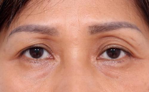 nguyên nhân hốc mắt sâu