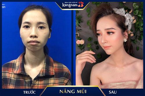 nâng mũi cấu trúc kangnam