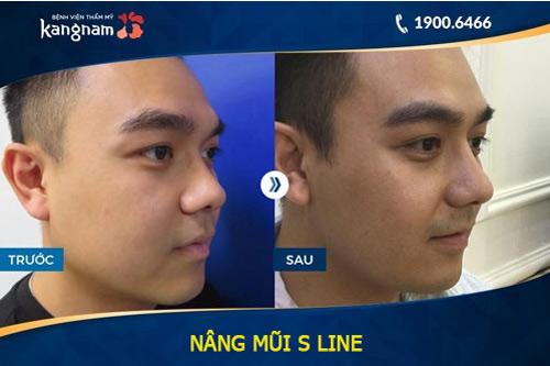 nâng mũi s line 3d