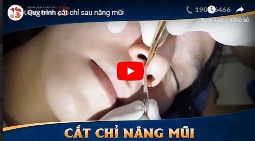 video quy trình nâng mũi