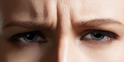 xóa nếp nhăn quanh mắt