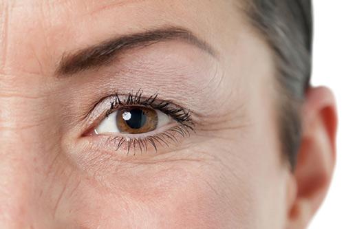 cách trị nếp nhăn vùng mắt