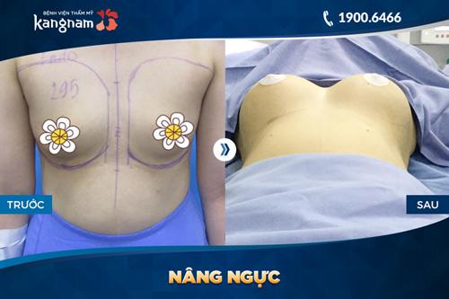 ngực bị lệch