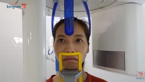 Phẫu thuật chỉnh hàm hô tại kangnam có đau không