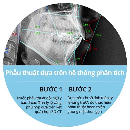 Phẫu thuật gọt xương hàm giá bao nhiêu