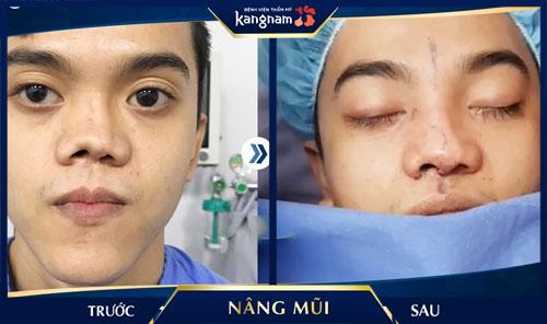 phẫu thuật nâng mũi bằng sụn sườn