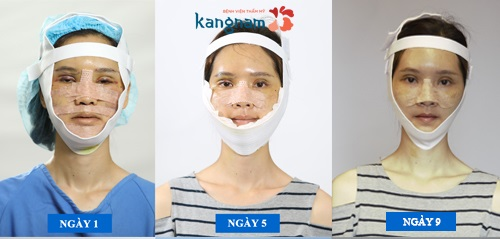 phẫu thuật trượt cằm Kangnam