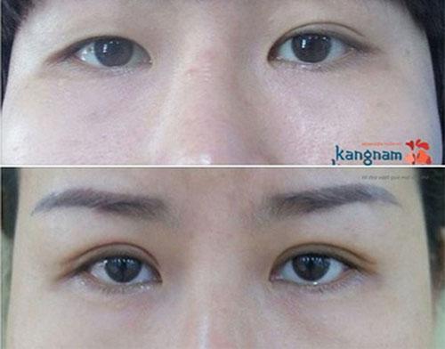 sửa mí mắt bị cắt hỏng như thế nào