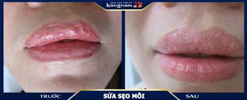 sửa sẹo môi