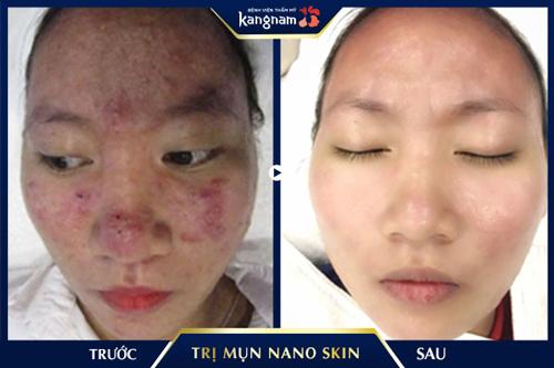 trị mụn bằng với nano skin