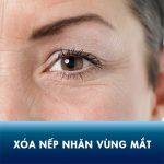 Bí quyết xóa nếp nhăn vùng mắt cho đôi mắt trẻ trung không tuổi
