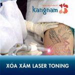 Xóa xăm Laser Toning Plus – Thách thức mọi hình xăm khó, không đau, không sẹo
