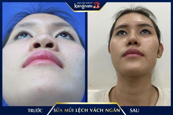 bệnh vẹo vách ngăn mũi và cách điều trị