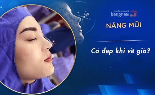 các biến chứng khi nâng mũi